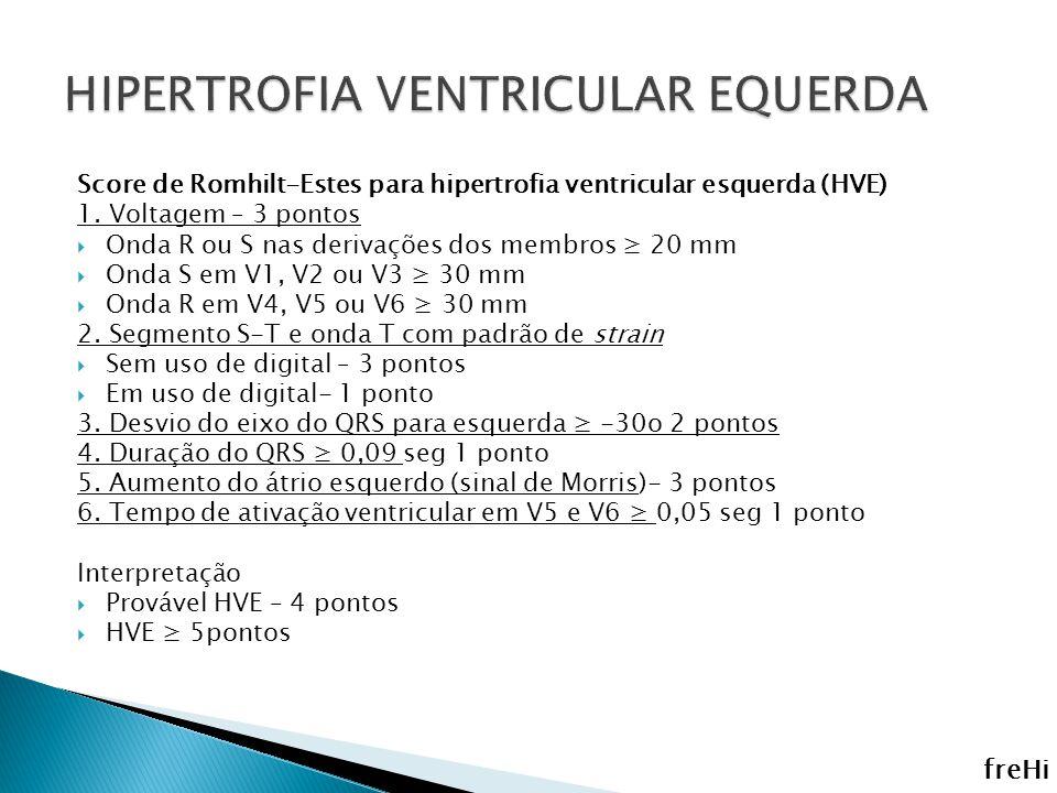 Score de Romhilt-Estes para hipertrofia ventricular esquerda (HVE) 1. Voltagem – 3 pontos Onda R ou S nas derivações dos membros 20 mm Onda S em V1, V