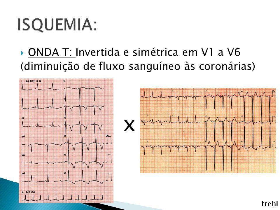 ONDA T: Invertida e simétrica em V1 a V6 (diminuição de fluxo sanguíneo às coronárias) x frehI