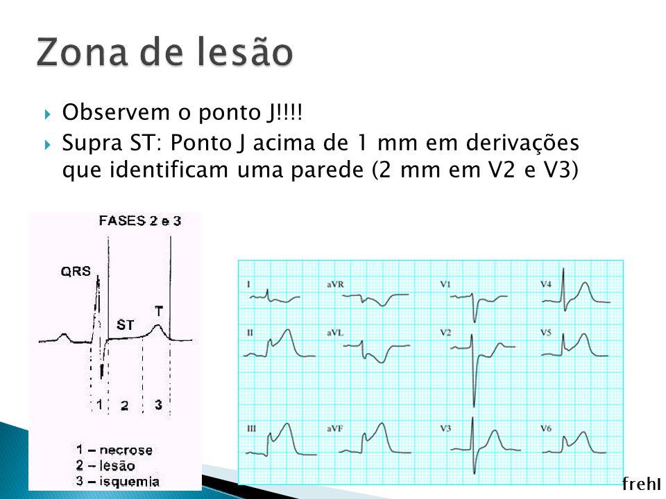 Observem o ponto J!!!! Supra ST: Ponto J acima de 1 mm em derivações que identificam uma parede (2 mm em V2 e V3) frehI
