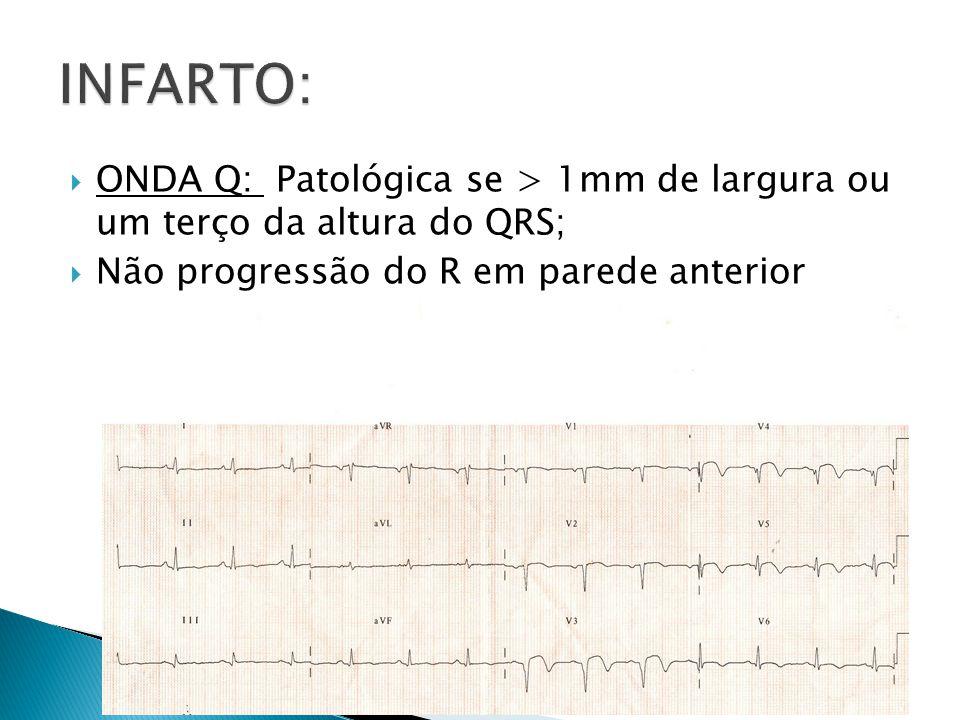 ONDA Q: Patológica se > 1mm de largura ou um terço da altura do QRS; Não progressão do R em parede anterior
