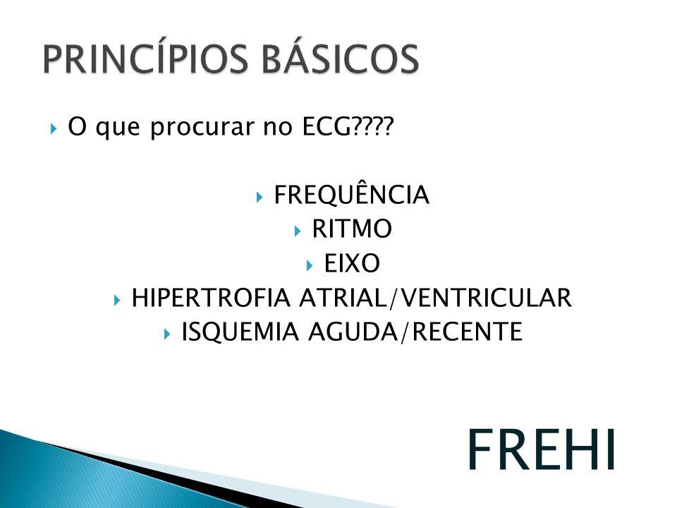 O que procurar no ECG???? FREQUÊNCIA RITMO EIXO HIPERTROFIA ATRIAL/VENTRICULAR ISQUEMIA AGUDA/RECENTE FREHI