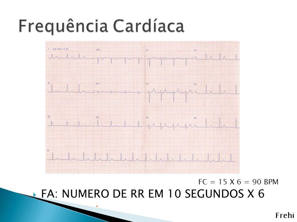 FA: NUMERO DE RR EM 10 SEGUNDOS X 6 FC = 15 X 6 = 90 BPM Frehi