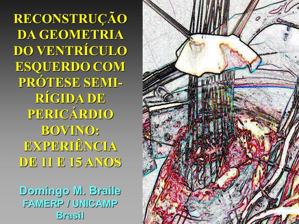 RECONSTRUÇÃO DA GEOMETRIA DO VENTRÍCULO ESQUERDO COM PRÓTESE SEMI- RÍGIDA DE PERICÁRDIO BOVINO: EXPERIÊNCIA DE 11 E 15 ANOS Domingo M. Braile FAMERP /