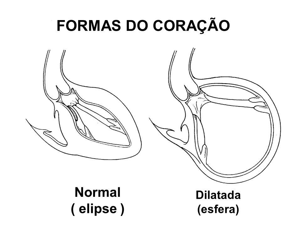 FORMAS DO CORAÇÃO Dilatada (esfera) Normal ( elipse )
