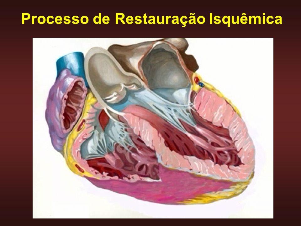 Relação anormal entre estrutura e função ventricular causa ICC HIPÓTESE