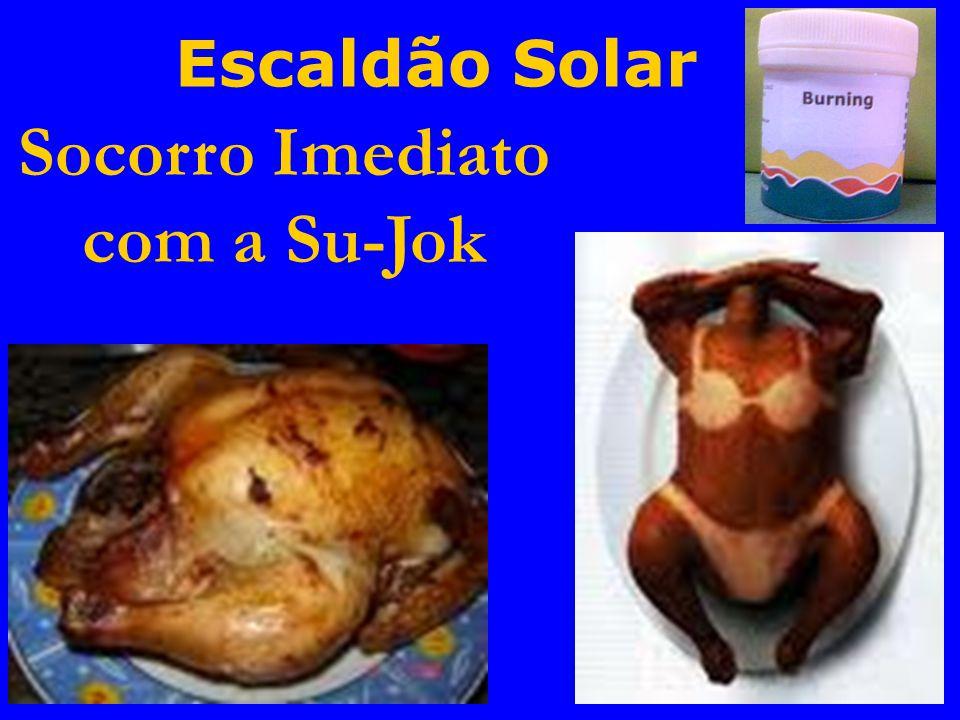 Escaldão Solar Socorro Imediato com a Su-Jok