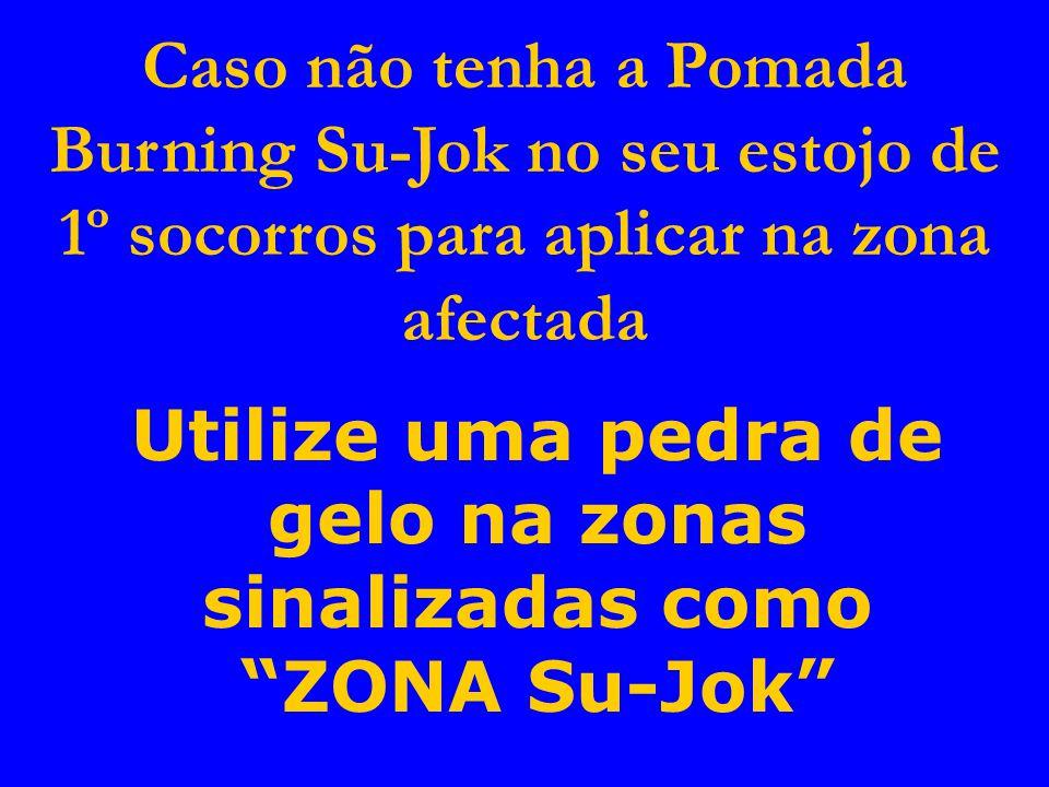 Caso não tenha a Pomada Burning Su-Jok no seu estojo de 1º socorros para aplicar na zona afectada Utilize uma pedra de gelo na zonas sinalizadas como ZONA Su-Jok