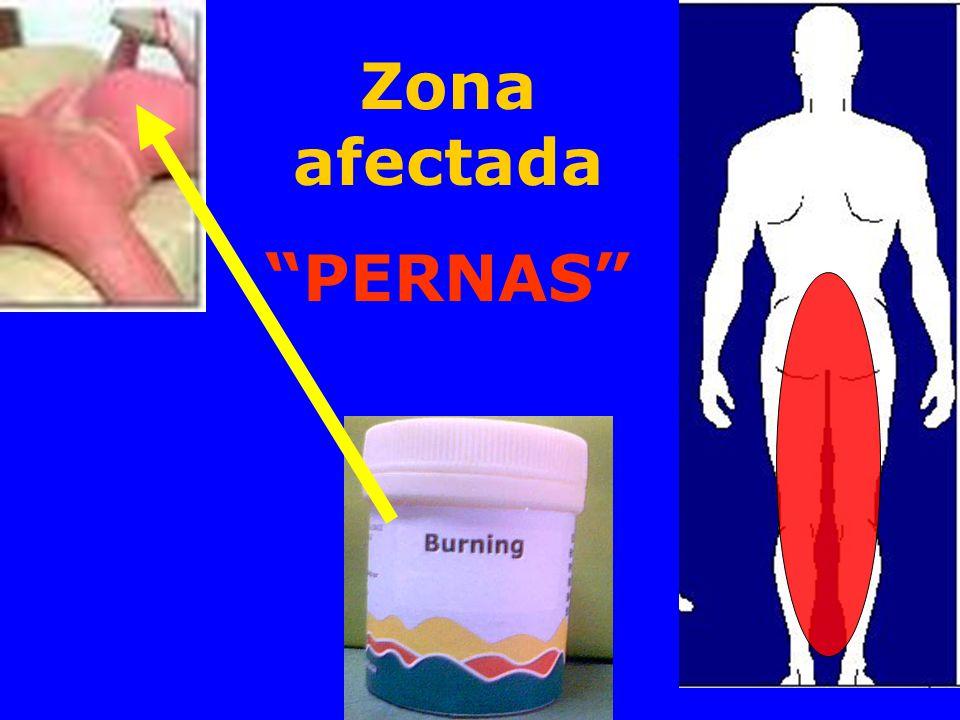 Zona afectada PERNAS