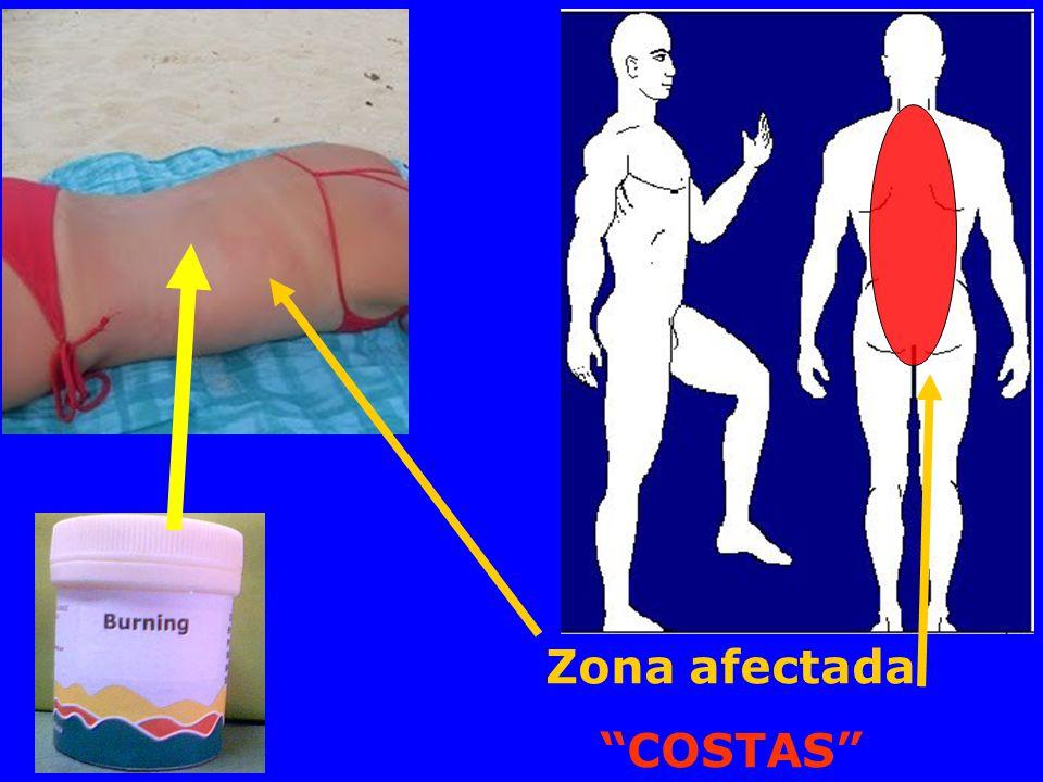 Zona afectada COSTAS