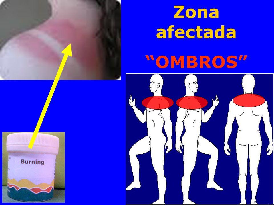 Zona afectada OMBROS