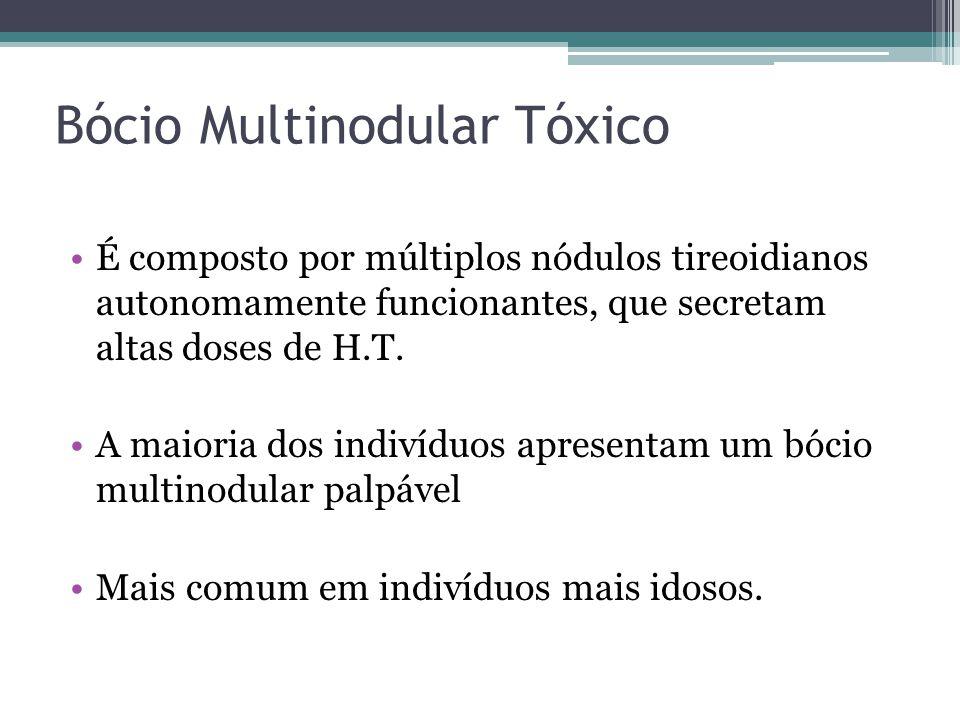 Bócio Multinodular Tóxico É composto por múltiplos nódulos tireoidianos autonomamente funcionantes, que secretam altas doses de H.T. A maioria dos ind
