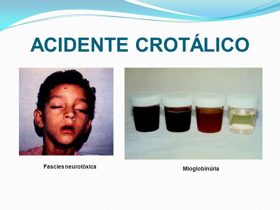 ACIDENTE CROTÁLICO Fascies neurotóxica Mioglobinúria