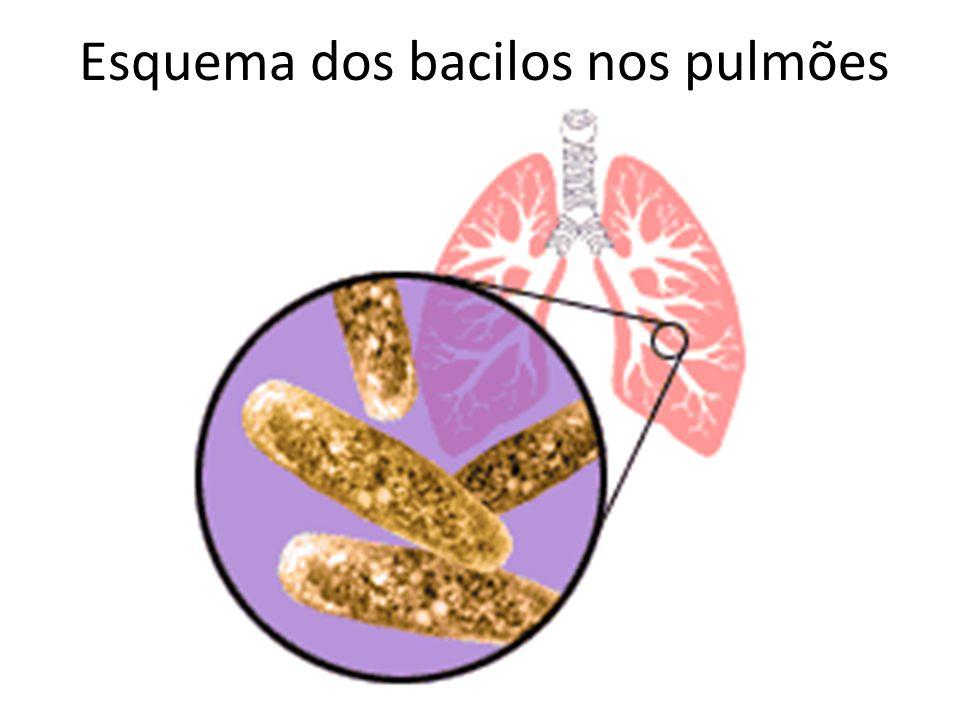 Esquema dos bacilos nos pulmões
