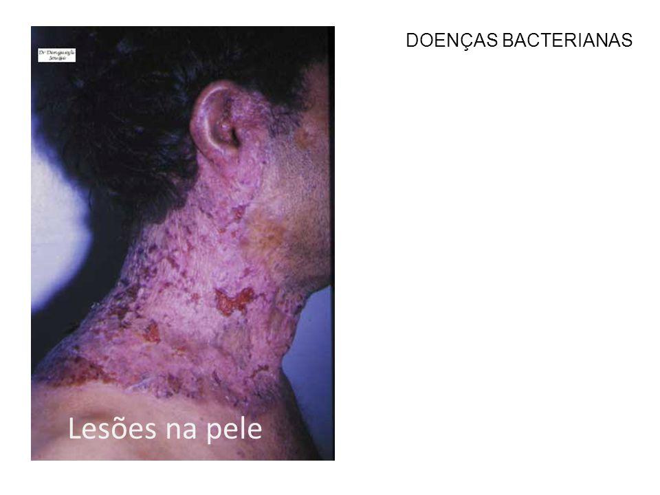Lesões na pele DOENÇAS BACTERIANAS