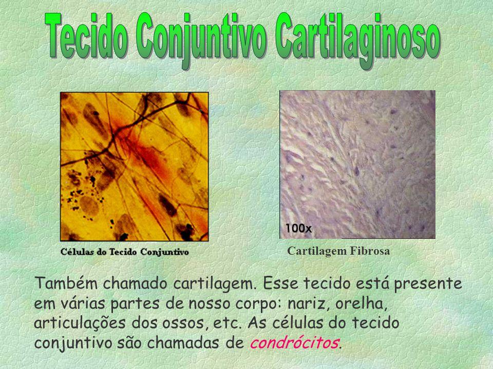 3-TECIDO CONJUNTIVO CARTILAGINOSO -Células: condrócitos; -Função: resistência a trações e pressões, flexibilidade, nas articulações, ele recobre as ex
