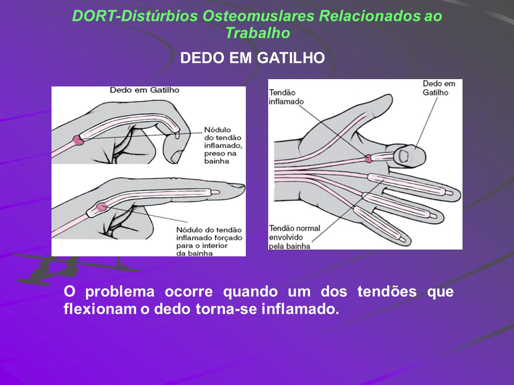 DORT-Distúrbios Osteomuslares Relacionados ao Trabalho DEDO EM GATILHO O problema ocorre quando um dos tendões que flexionam o dedo torna-se inflamado