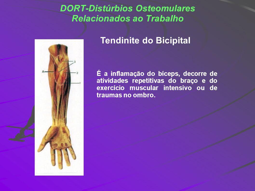 DORT-Distúrbios Osteomulares Relacionados ao Trabalho É a inflamação do bíceps, decorre de atividades repetitivas do braço e do exercício muscular int