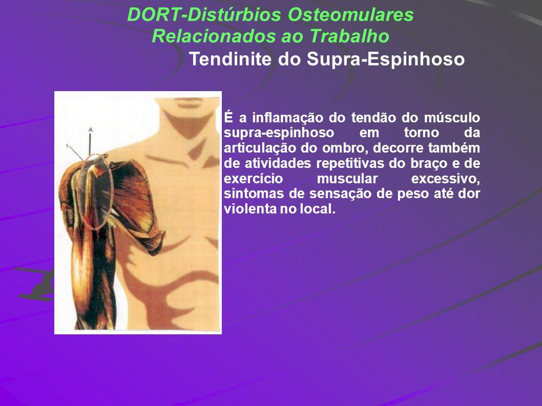 DORT-Distúrbios Osteomulares Relacionados ao Trabalho É a inflamação do tendão do músculo supra-espinhoso em torno da articulação do ombro, decorre ta