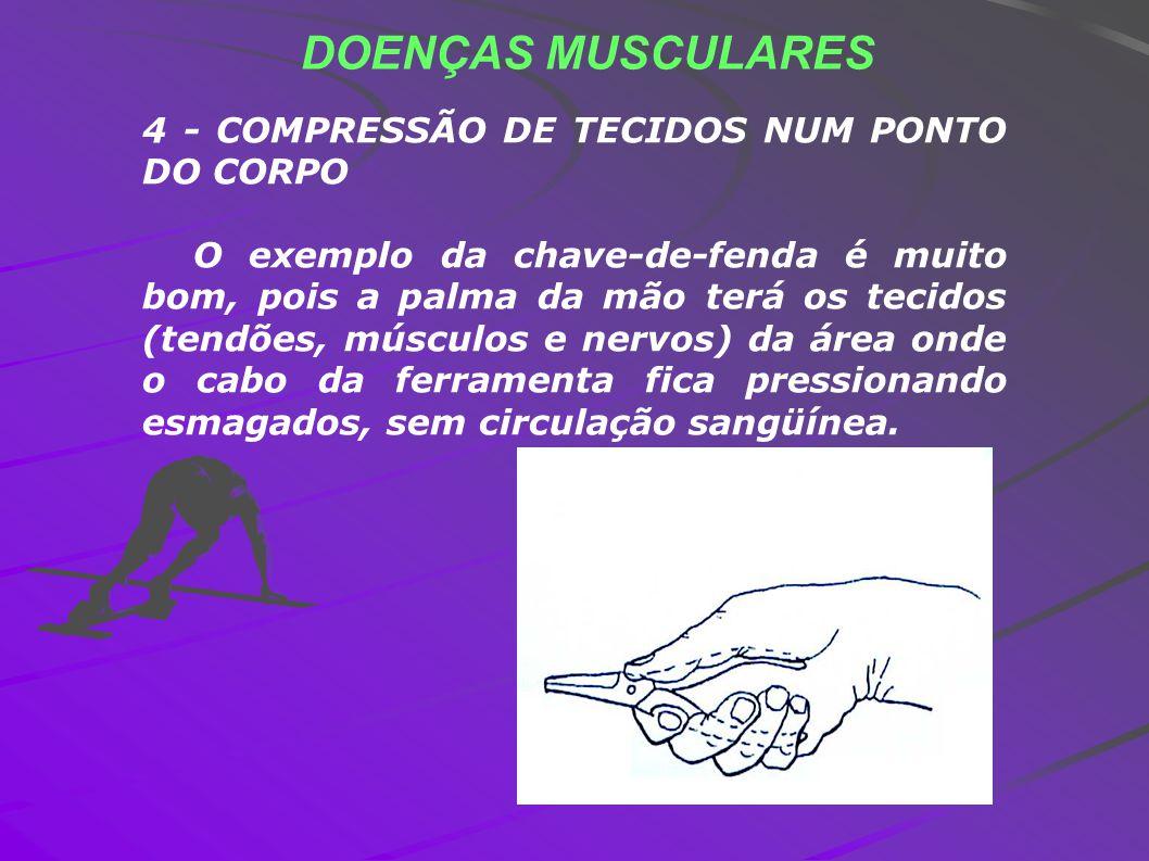 DOENÇAS MUSCULARES 4 - COMPRESSÃO DE TECIDOS NUM PONTO DO CORPO O exemplo da chave-de-fenda é muito bom, pois a palma da mão terá os tecidos (tendões,