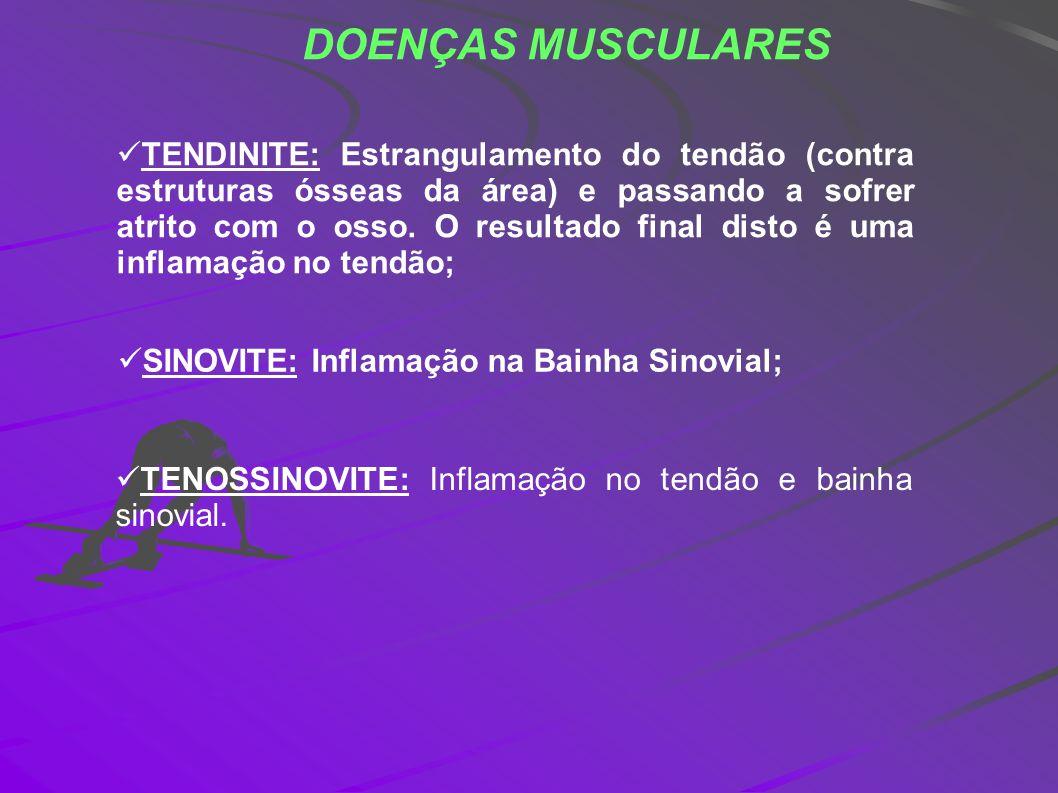 DOENÇAS MUSCULARES TENDINITE: Estrangulamento do tendão (contra estruturas ósseas da área) e passando a sofrer atrito com o osso. O resultado final di