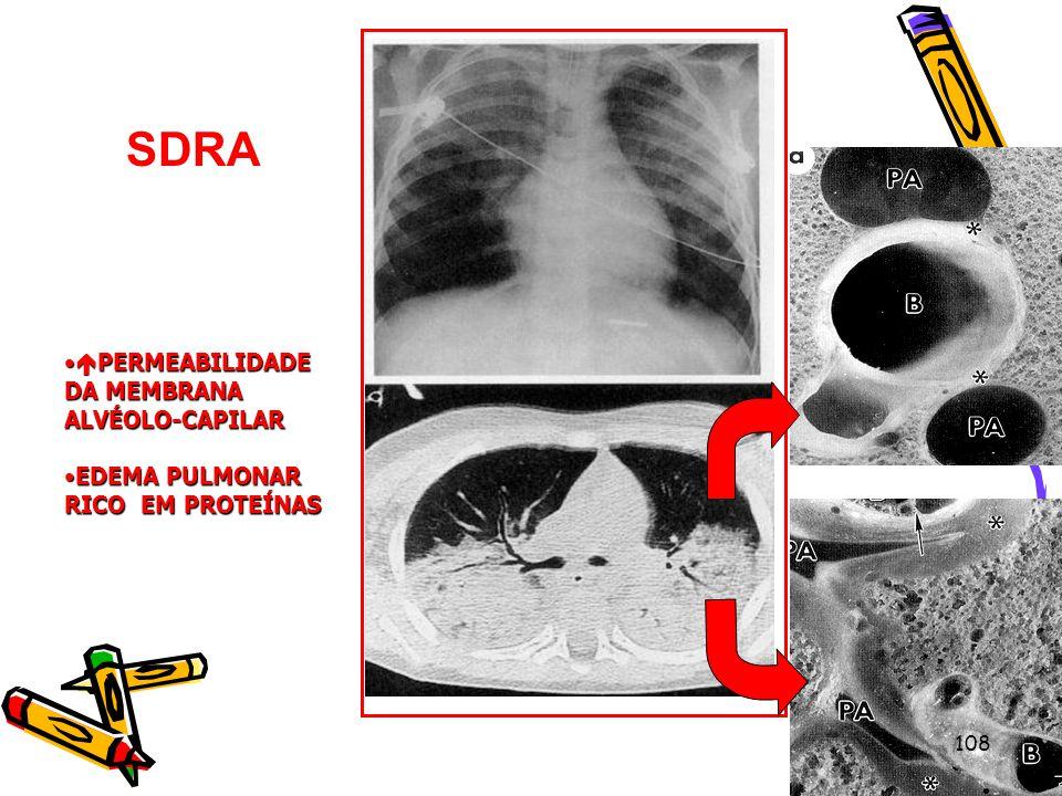 SDRA PERMEABILIDADE DA MEMBRANA ALVÉOLO-CAPILAR PERMEABILIDADE DA MEMBRANA ALVÉOLO-CAPILAR EDEMA PULMONAR RICO EM PROTEÍNASEDEMA PULMONAR RICO EM PROT