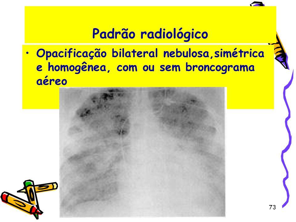Padrão radiológico Opacificação bilateral nebulosa,simétrica e homogênea, com ou sem broncograma aéreo 73
