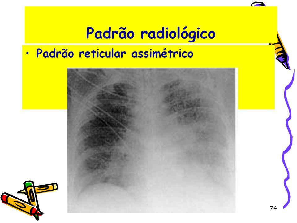 Padrão radiológico Padrão reticular assimétrico 74