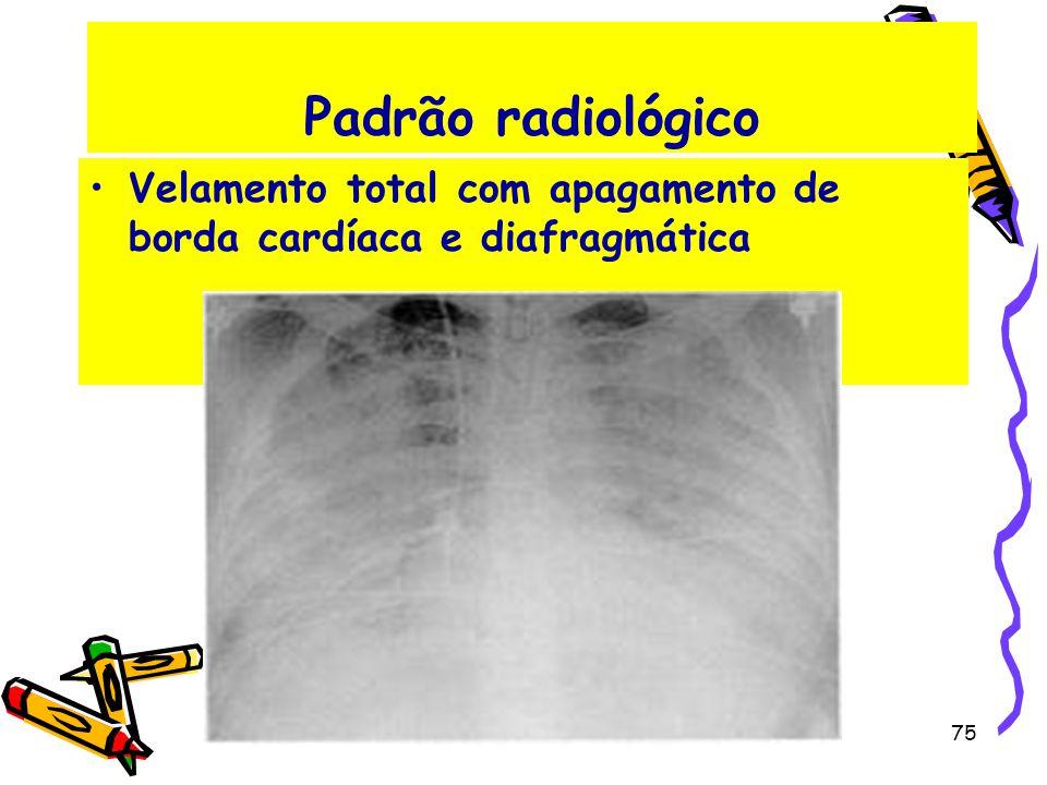 Padrão radiológico Velamento total com apagamento de borda cardíaca e diafragmática 75