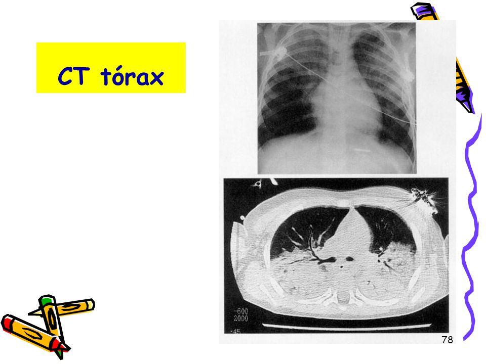 CT tórax 78