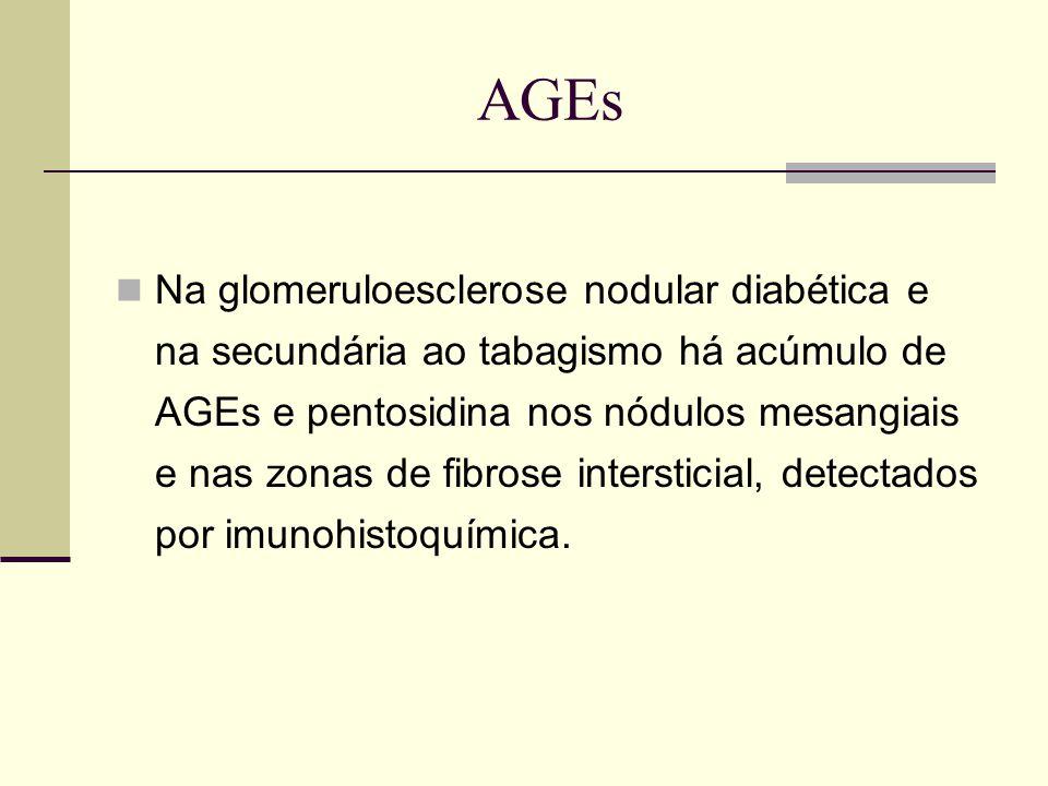 AGEs Na glomeruloesclerose nodular diabética e na secundária ao tabagismo há acúmulo de AGEs e pentosidina nos nódulos mesangiais e nas zonas de fibro