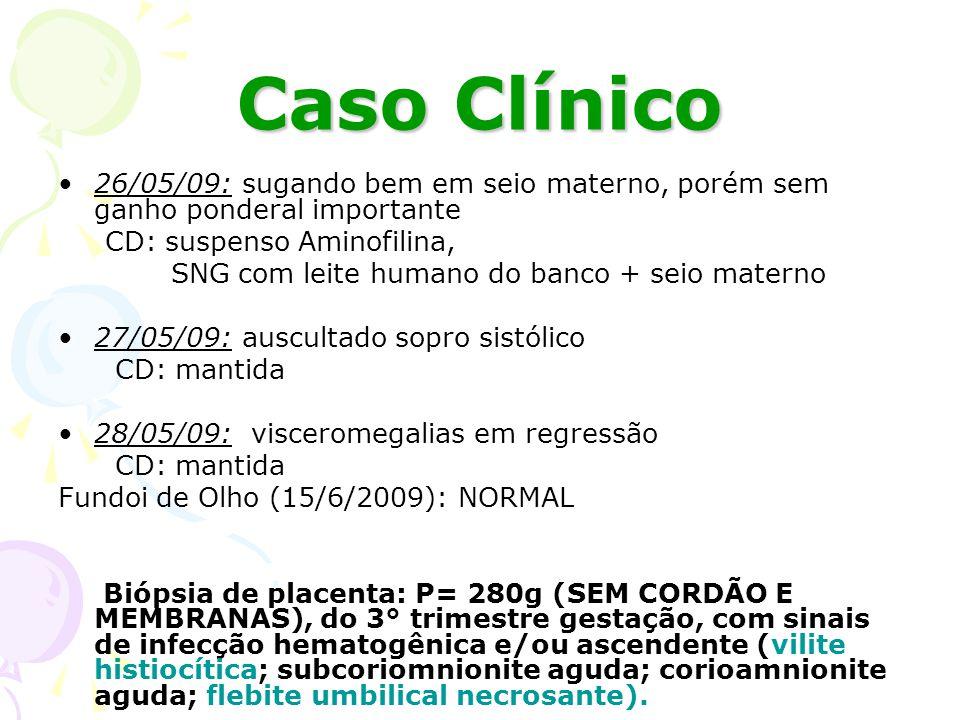 Placenta: histologia Cordão umbilical: periflebite nerosante umbilical Vilite: proliferação de células Hofbauer