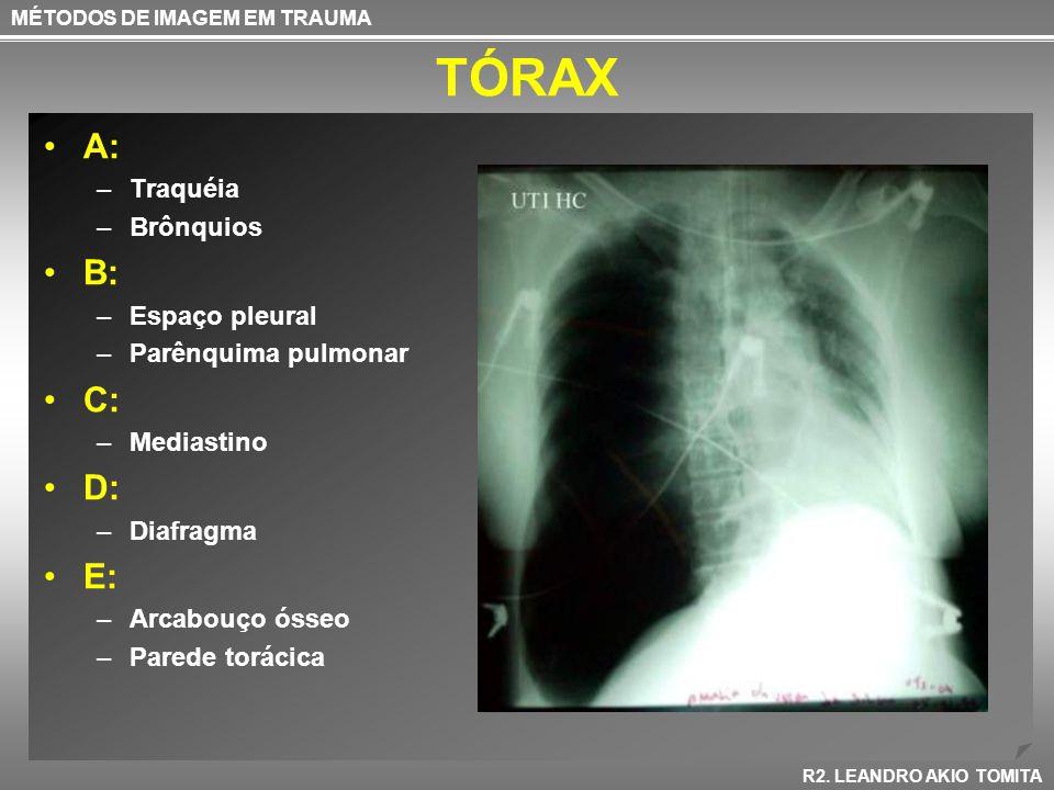 TÓRAX A: –Traquéia –Brônquios B: –Espaço pleural –Parênquima pulmonar C: –Mediastino D: –Diafragma E: –Arcabouço ósseo –Parede torácica MÉTODOS DE IMA