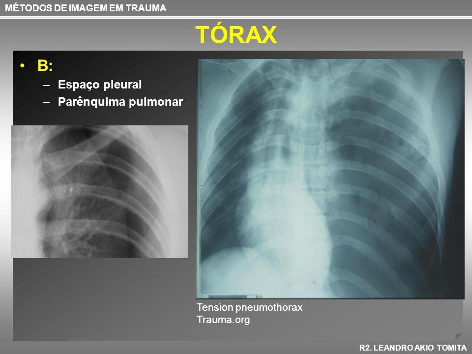 TÓRAX B: –Espaço pleural –Parênquima pulmonar MÉTODOS DE IMAGEM EM TRAUMA R2. LEANDRO AKIO TOMITA Tension pneumothorax Trauma.org