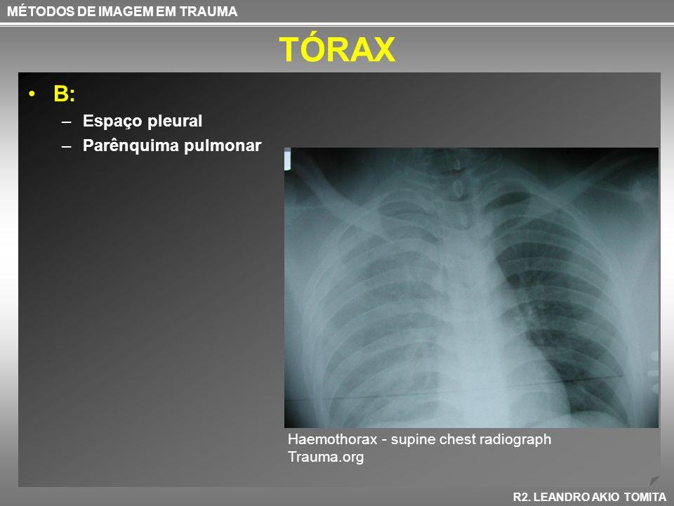 TÓRAX B: –Espaço pleural –Parênquima pulmonar MÉTODOS DE IMAGEM EM TRAUMA R2. LEANDRO AKIO TOMITA Haemothorax - supine chest radiograph Trauma.org