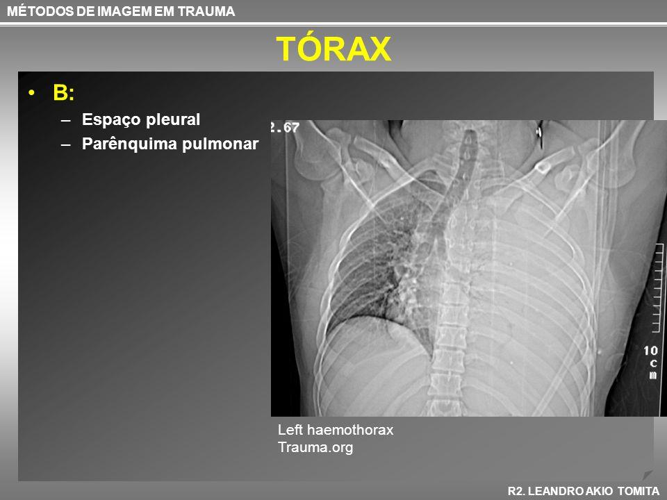 TÓRAX B: –Espaço pleural –Parênquima pulmonar MÉTODOS DE IMAGEM EM TRAUMA R2. LEANDRO AKIO TOMITA Left haemothorax Trauma.org