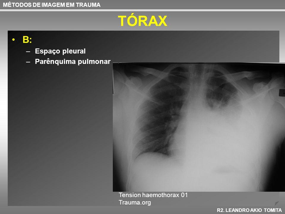 TÓRAX B: –Espaço pleural –Parênquima pulmonar MÉTODOS DE IMAGEM EM TRAUMA R2. LEANDRO AKIO TOMITA Tension haemothorax 01 Trauma.org