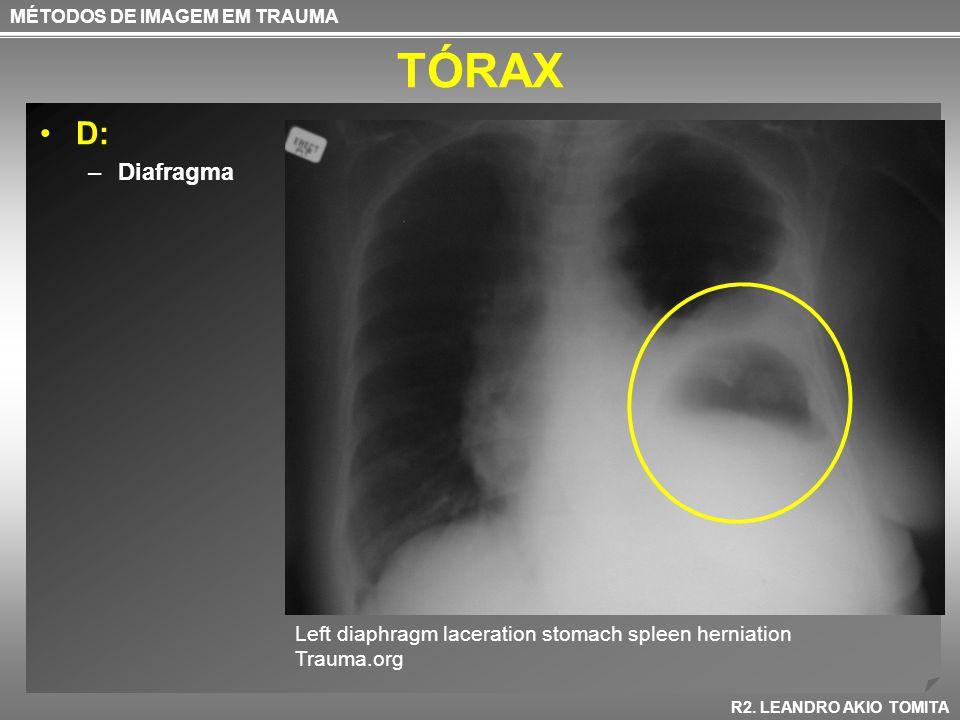TÓRAX D: –Diafragma MÉTODOS DE IMAGEM EM TRAUMA R2. LEANDRO AKIO TOMITA Left diaphragm laceration stomach spleen herniation Trauma.org
