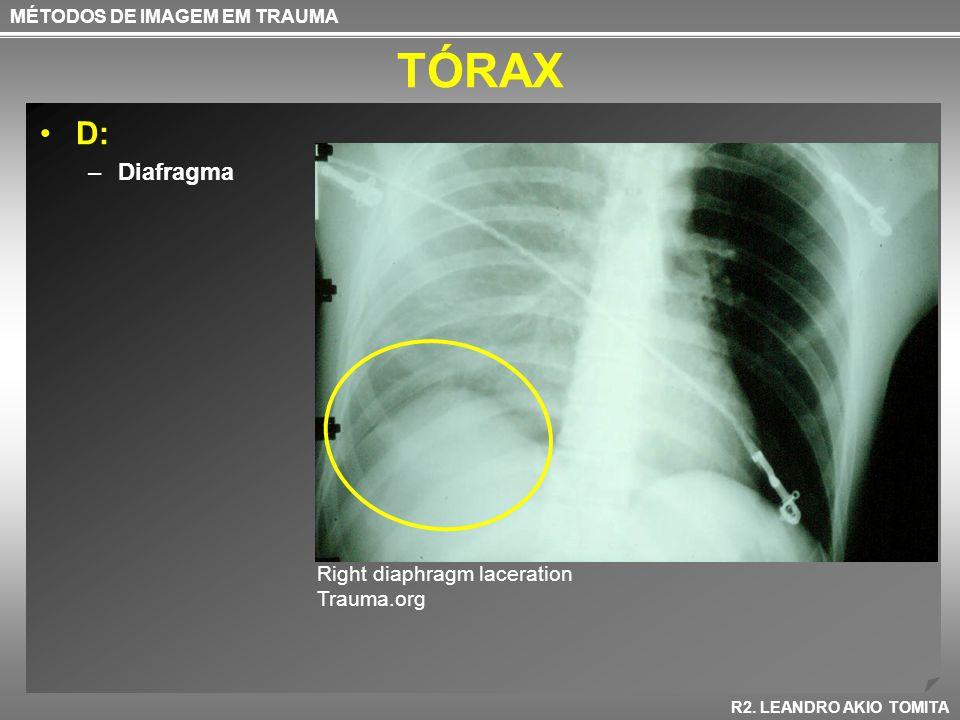 TÓRAX D: –Diafragma MÉTODOS DE IMAGEM EM TRAUMA R2. LEANDRO AKIO TOMITA Right diaphragm laceration Trauma.org