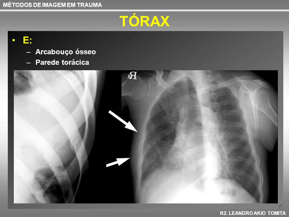 TÓRAX E: –Arcabouço ósseo –Parede torácica MÉTODOS DE IMAGEM EM TRAUMA R2. LEANDRO AKIO TOMITA