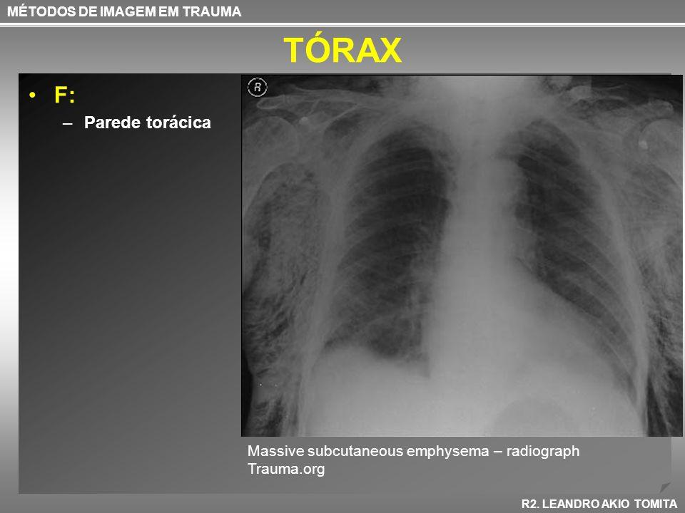 TÓRAX F: –Parede torácica MÉTODOS DE IMAGEM EM TRAUMA R2. LEANDRO AKIO TOMITA Massive subcutaneous emphysema – radiograph Trauma.org