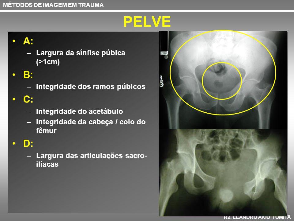 PELVE A: –Largura da sínfise púbica (>1cm) B: –Integridade dos ramos púbicos C: –Integridade do acetábulo –Integridade da cabeça / colo do fêmur D: –L