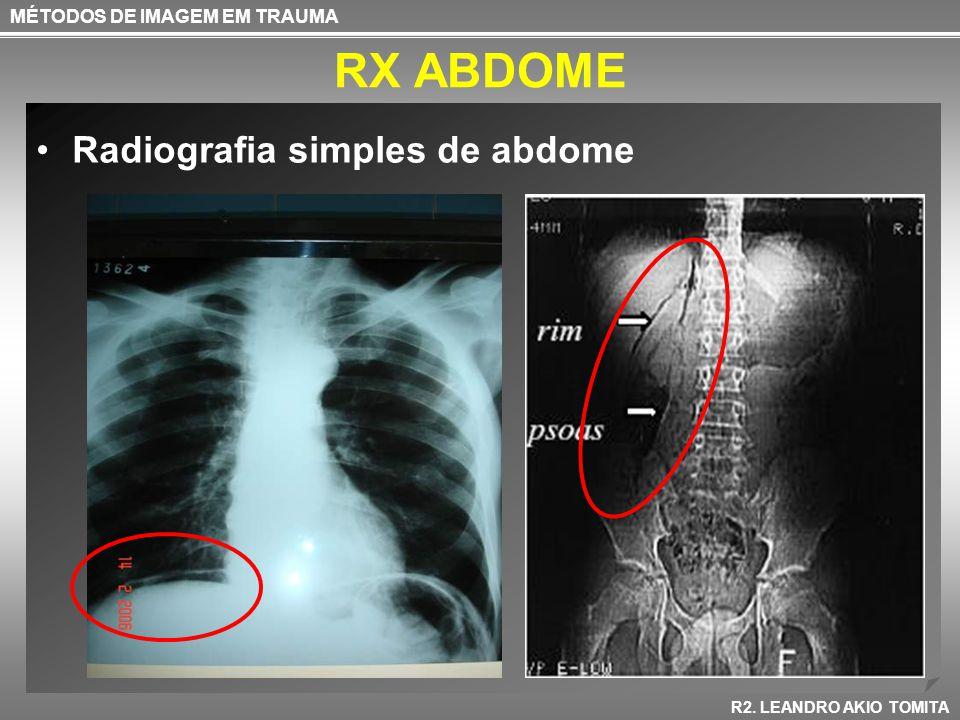 RX ABDOME MÉTODOS DE IMAGEM EM TRAUMA R2. LEANDRO AKIO TOMITA Radiografia simples de abdome