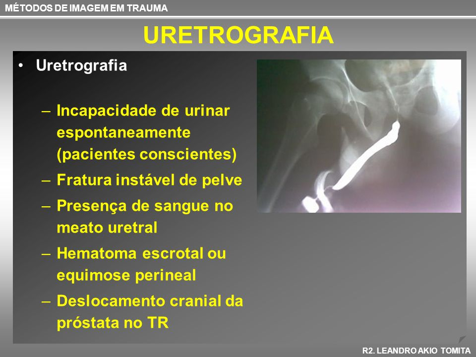 URETROGRAFIA MÉTODOS DE IMAGEM EM TRAUMA R2. LEANDRO AKIO TOMITA Uretrografia –Incapacidade de urinar espontaneamente (pacientes conscientes) –Fratura