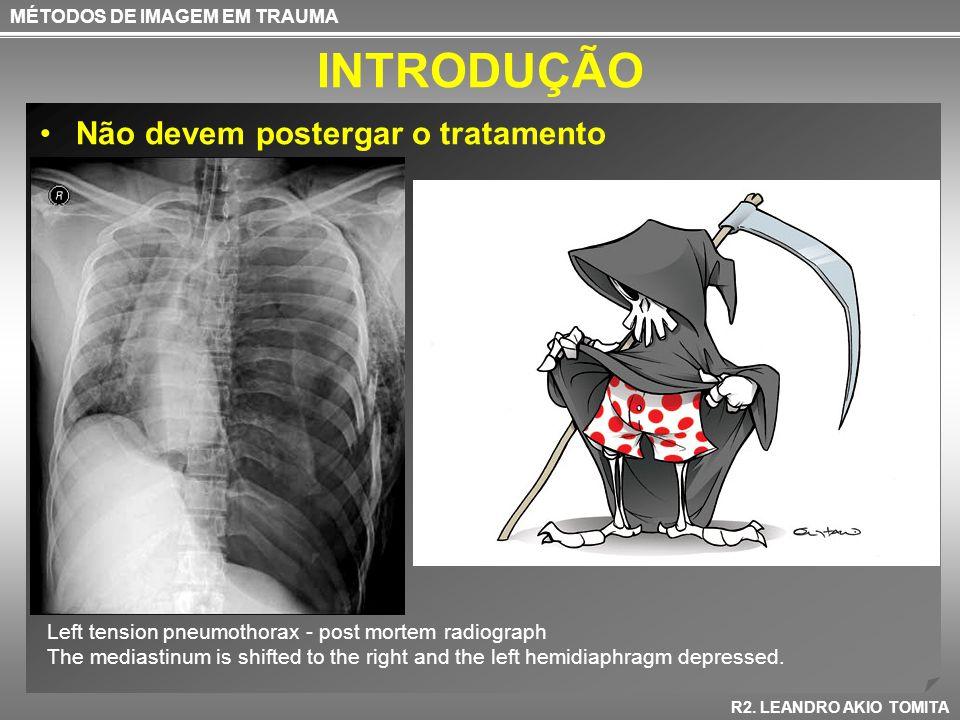 INTRODUÇÃO Não devem postergar o tratamento MÉTODOS DE IMAGEM EM TRAUMA R2. LEANDRO AKIO TOMITA Left tension pneumothorax - post mortem radiograph The