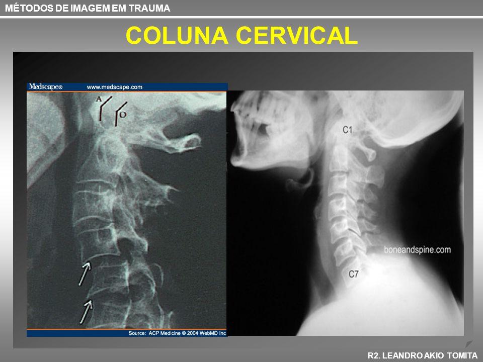COLUNA CERVICAL Rotinas Coluna Cervical –Verificar a presença de C1 C7 + parte superior de T1 –Avaliação Anatômica –Ossos –Cartilagem –Partes Moles MÉTODOS DE IMAGEM EM TRAUMA R2.