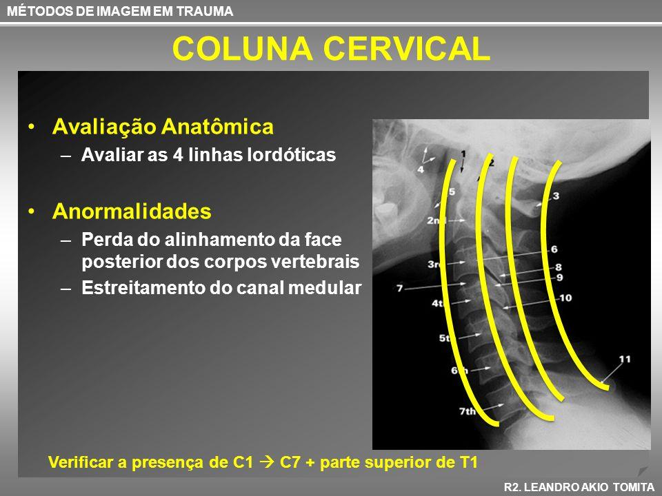 COLUNA CERVICAL Avaliação Anatômica –Avaliar as 4 linhas lordóticas Anormalidades –Perda do alinhamento da face posterior dos corpos vertebrais –Estre