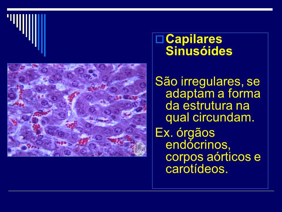 Capilares Sinusóides São irregulares, se adaptam a forma da estrutura na qual circundam. Ex. órgãos endócrinos, corpos aórticos e carotídeos.