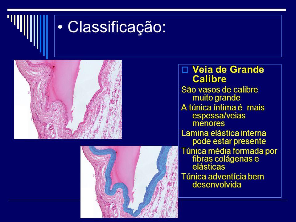 Classificação: Veia de Grande Calibre São vasos de calibre muito grande A túnica íntima é mais espessa/veias menores Lamina elástica interna pode esta