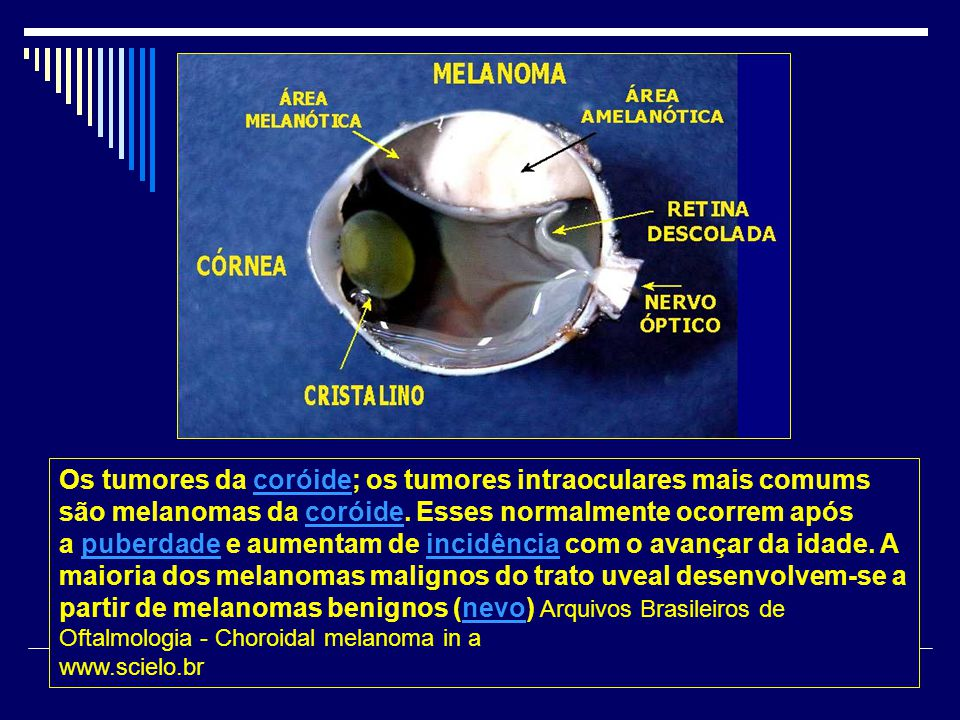 Os tumores da coróide; os tumores intraoculares mais comums são melanomas da coróide.