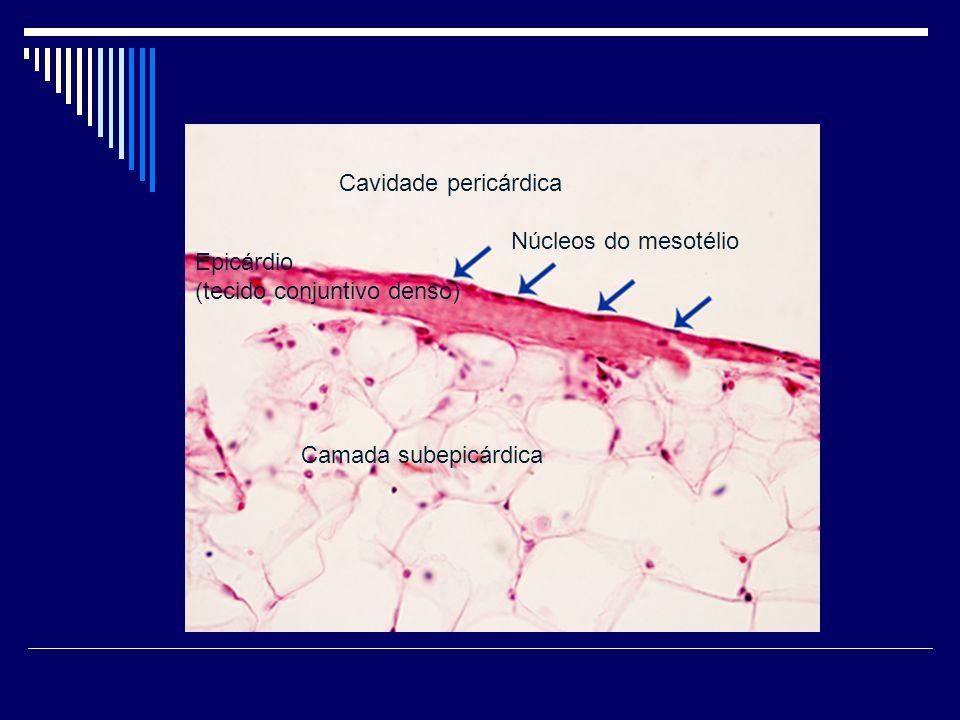 Epicárdio (tecido conjuntivo denso) Camada subepicárdica Núcleos do mesotélio Cavidade pericárdica